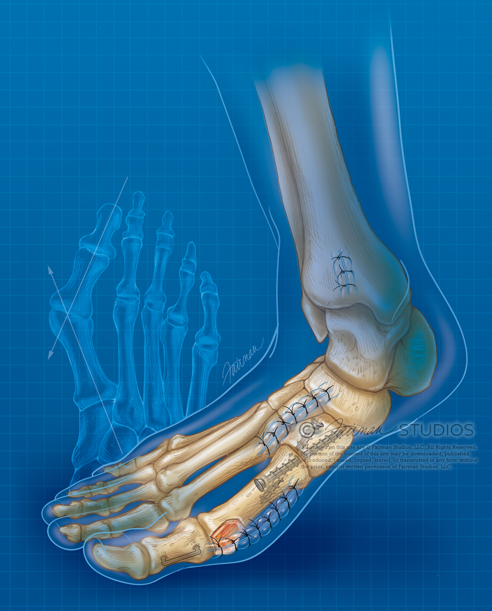 The Modified Lapidus Procedure