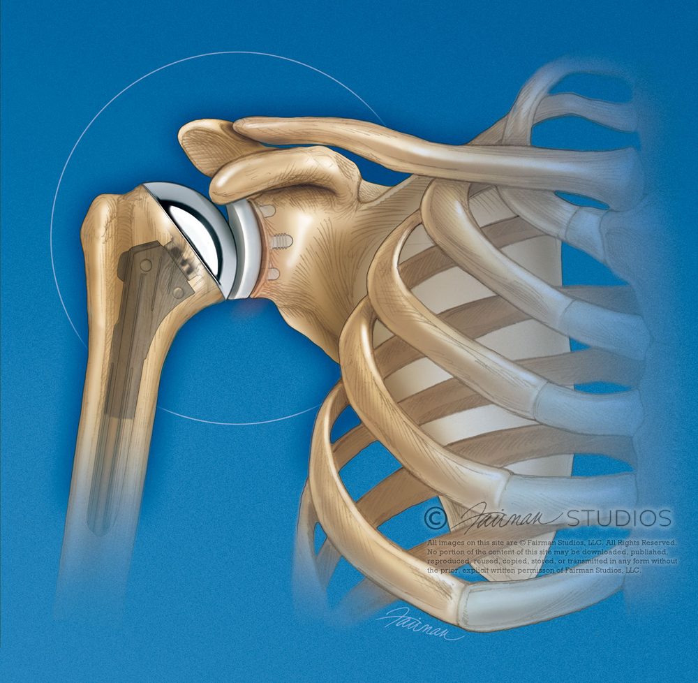 Failed Total Shoulder Arthroplasty