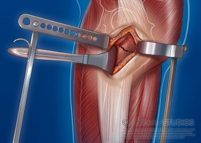 """Hands Free"" Femoral Retraction"